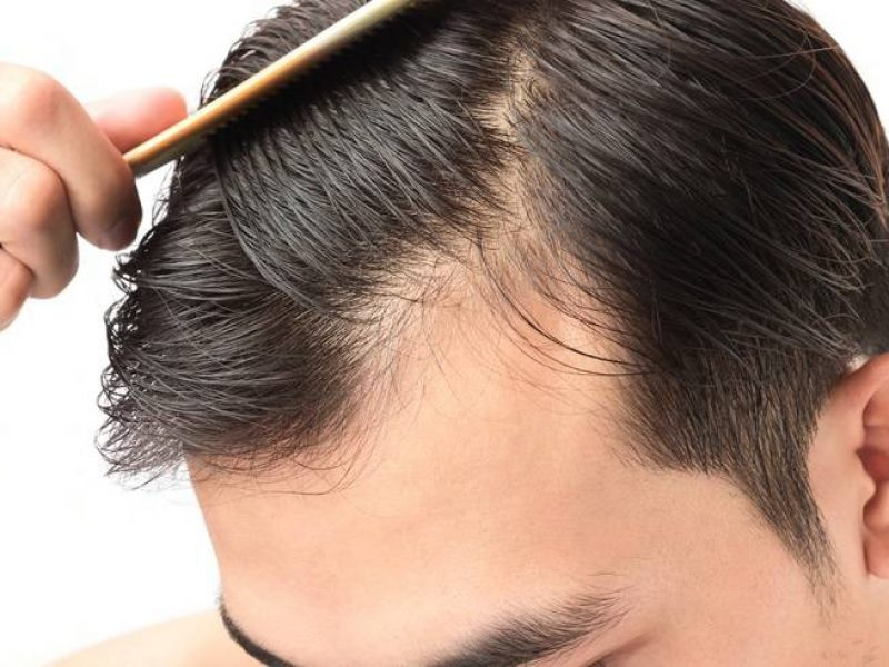 PRP-Injection-Hair-Loss